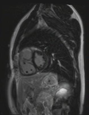 Correction complète de Fallot avec dilatation des cavités droites et insuffisance pulmonaire fl3d_51seg_ir PA T 260
