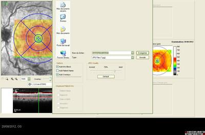 Rétinopathie diabétique préproliférante puis floride bilatérale Mapping ODG M6