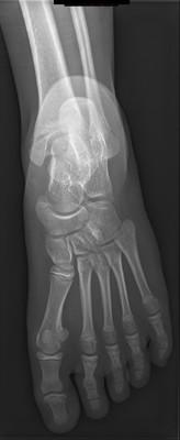 Syndrome de l'os naviculaire accessoire Radiographie pied gauche face