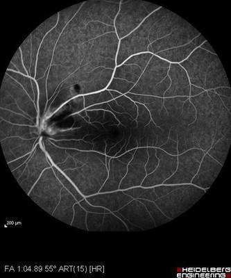 Foyer de toxoplasmose juxta-papillaire : papille de Jensen Angiographie fluorescéine OG