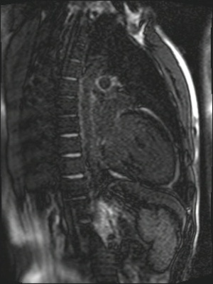 Non compaction du ventricule gauche TrueFISP_PSIR_2D_10Slice_TI300 LA_MAG