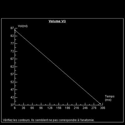 IDM latéro-apical localisé fonction vg jlp