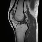 Plicae synoviale médiale  IRM genou Sagittal T1 TSE
