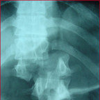 fracture type C de magerl image 1