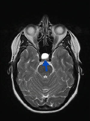 Kyste de la poche de Rathke  IRM Axial T2 SE