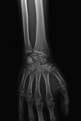 Acute calcific tendinitis of Flexor Carpi Ulnaris fig-01