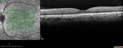 Rétinopathie diabétique préproliférante puis floride bilatérale  OCT maculaire OG