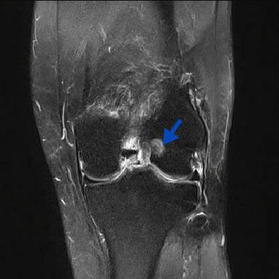Kyste mucoïde du genou  IRM du genou Coronal DP Fat Sat