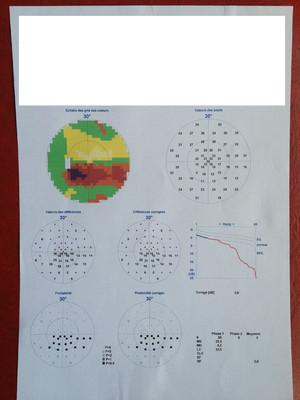 Foyer de toxoplasmose juxta-papillaire : papille de Jensen Champ visuel Top G2 OG