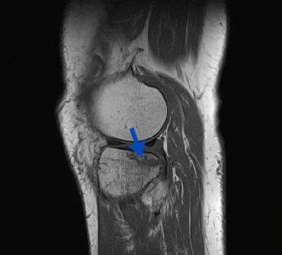 Fracture trabéculaire sous-chondrale  IRM genou Sagittal T1 TSE