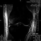 Rupture du LCA et du ligament collatéral médial FRONTAL DP FAT SAT