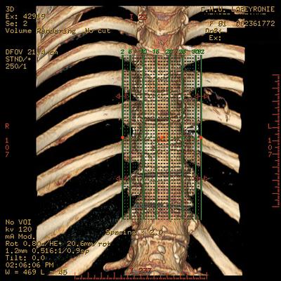 Aggressive vertebral angioma of T6 D3  A  D12 SAGITTAL MOU