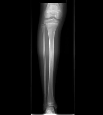 Ostéome ostéoïde cortical postérieur du tibia droit Radiogrpahie jambe droite de face