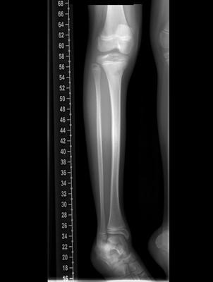 Ostéome ostéoïde cortical postérieur du tibia droit Radiogrpahie jambe droite de 3/4