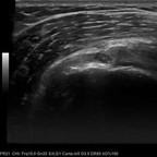 Lésion fissuraire transfixiante de l'enthèse antérieure du supra-épineux se prolongeant par une fissuration intra-tendineuse  Echographie Coupe longitudinale supra-épineux
