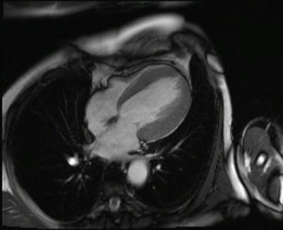 HVG avec asynchronisme marqué du septum interventriculaire CINE TrueFISP 4CAV GADO