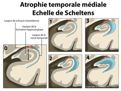 Atrophie hippocampique (Scheltens) Classification de Scheltens - Schéma