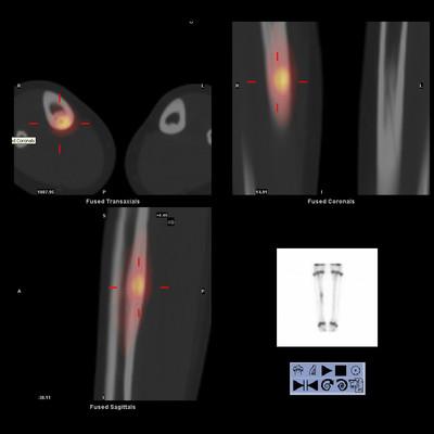 Ostéome ostéoïde cortical postérieur du tibia droit Scintigraphie osseuse