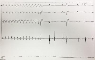 Dysplasie arythmogène du ventriule droit (DAVD) : critère majeur en IRM  ECG de réduction