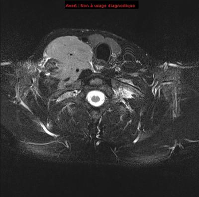 Lymphome de Burkitt  IRM Cou Axial