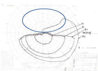 Occlusion de la branche temporale inférieure de l'artère centrale de la rétine OD Surveillance CV Goldman ODG