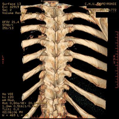 Aggressive vertebral angioma of T6 D3  A  D12 3D