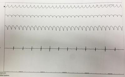 Dysplasie arythmogène du ventriule droit (DAVD) : critère majeur en IRM  ECG
