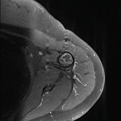 Enchondroma of the proximal humerus Axial T1 Fat Sat Gadolinium MRI