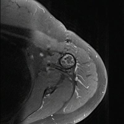 Tumeur à matrice cartilagineuse de l'humérus  IRM Axial T1 Fat Sat Gadolinium