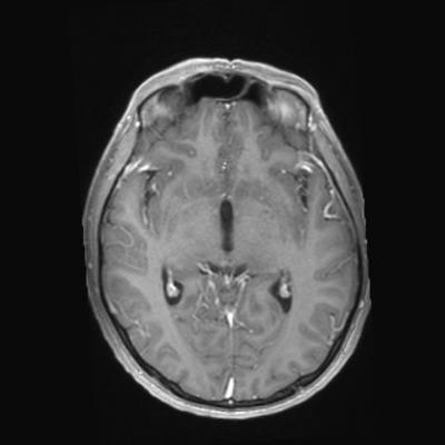 hémangioblastome  IRM Crâne Axial T1 Gadolinium