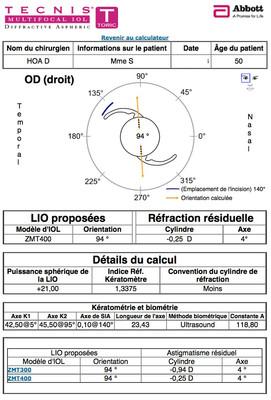 Cataracte sous capsulaire postérieure et astigmatisme cornéen - Implantation multifocale torique Calculateur IOL OD