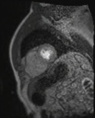 Dysplasie arythmogène du ventriule droit (DAVD) : critère majeur en IRM PERFUSION RespLib _dynamic_rest_MOCO