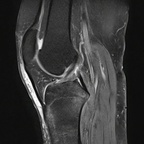 Fracture trabéculaire sous-chondrale  IRM genou Sagittal DP Fat Sat