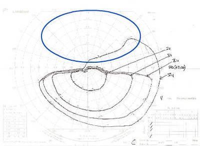 Occlusion de la branche temporale inférieure de l'artère centrale de la rétine OD CV Goldman ODG