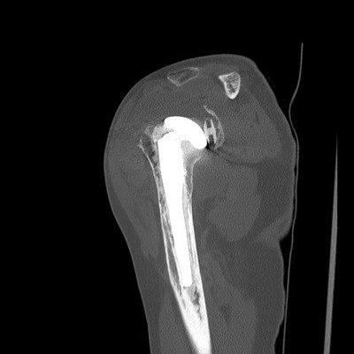 Déscellement granulomateux de la prothèse.  TDM Membre supérieur Sagittal